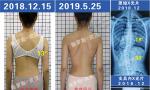 脊柱侧弯矫正没有年龄限制,不同年龄不同矫形目标