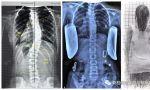 07年女孩支具内矫正率78%,为侧弯的矫正提供了非常好的基础条件