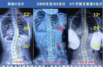 特发性脊柱侧弯矫正的核心在于正确的方法和有效的坚持