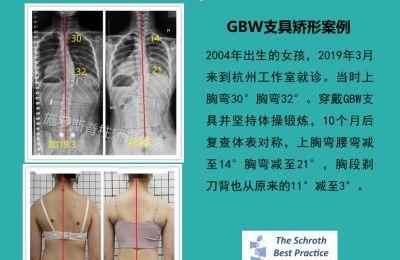 德国GBW支具矫形案例