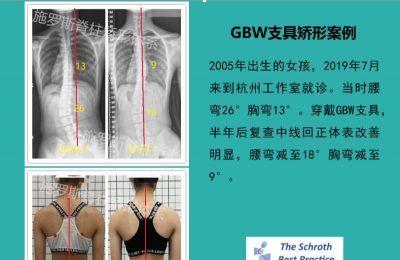 GBW®支具矫形案例分享